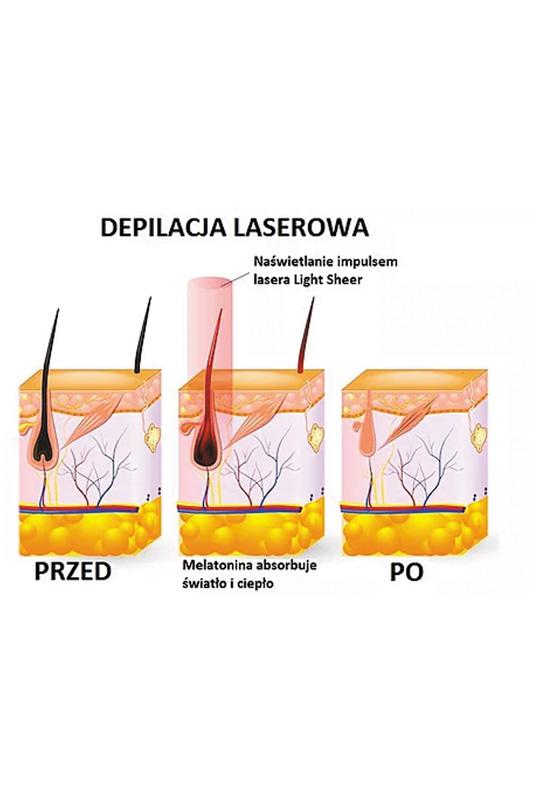 lightsheer- efekty po zabiegu depilacji laserowej